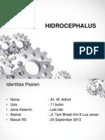 Hidrocephalus Eng