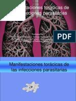 Manifestaciones toráxicas de las infecciones parasitarias