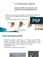 Apicectomia o Reseccion Apical