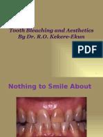 Dr. Kekere-Ekun Bleaching &Aesthetics