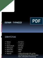 Case Demam Typhoid