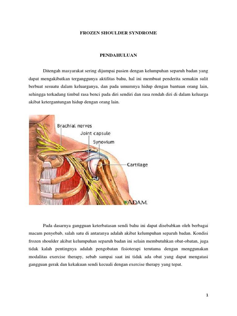 brachialis és scapularis artrosis