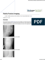 Patella Fracture Imaging