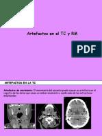 artefactosTC-RMN
