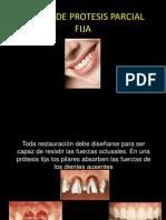 diseodeprotesisparcialfija-100505142359-phpapp01