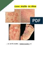 PSORISIS & ECZEMA सोराइसिस तथा एक्जिमा का आयुर्वेदिक उपचार