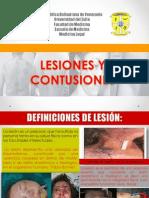 Seminario Contusiones - Final