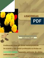 Leucemias General