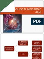 infartoagudoalmiocardioiam-