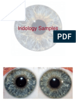 Iridology Samples 2
