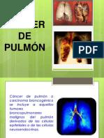 Trabajo Cancer de Pulmon