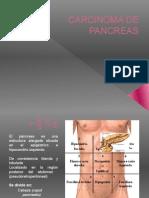 Camcer de Pancreas