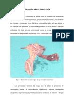 Cirugia de La is Nativa y Protesica