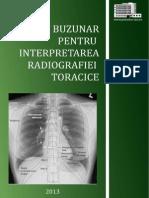 Ghid de Buzunar Pentru Interpretarea Radiografiei Toracice