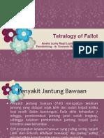 Tetralogi of fallot