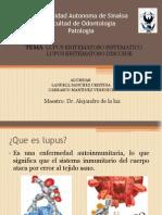 Lupus Exposicion