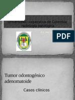 44412877 Tumor Odontogenico Adenomatoide
