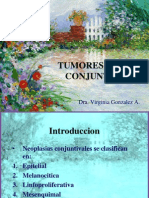 Tumores de La Conjuntiva