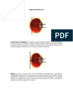 DefectosdeRefraccion.pdf