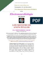 Anencephaly.doc