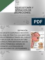 Traqueostomia.pptx