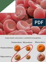 Anemia Macro