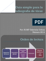 Guía simple para la radiografía de tórax