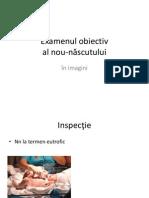 Examenul obiectiv al nou-născutului in imagini