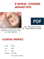 A Case of Mitral Stenosis