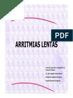 ARRITMIAS LENTAS 1