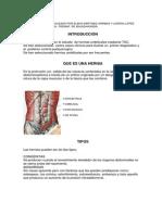 Hernias Umbilicales