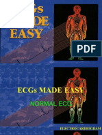 alfrin ECG