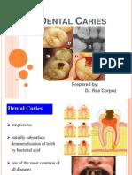 dentalcaries-130111084153-phpapp01