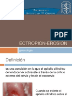 Ectropion Erosion