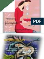 Aborto. Grupo 1