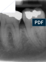 Anatomical Landmarks in Periapical Radiography