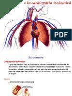 Kinetoterapia in Cardiopatia Ischemica
