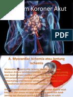 EKG Sindrom Koroner Akut