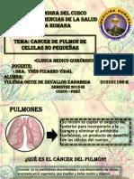 cancer de pulmon celulas no pequeñas neumo