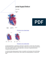 Facts About Atrial Septal Defect