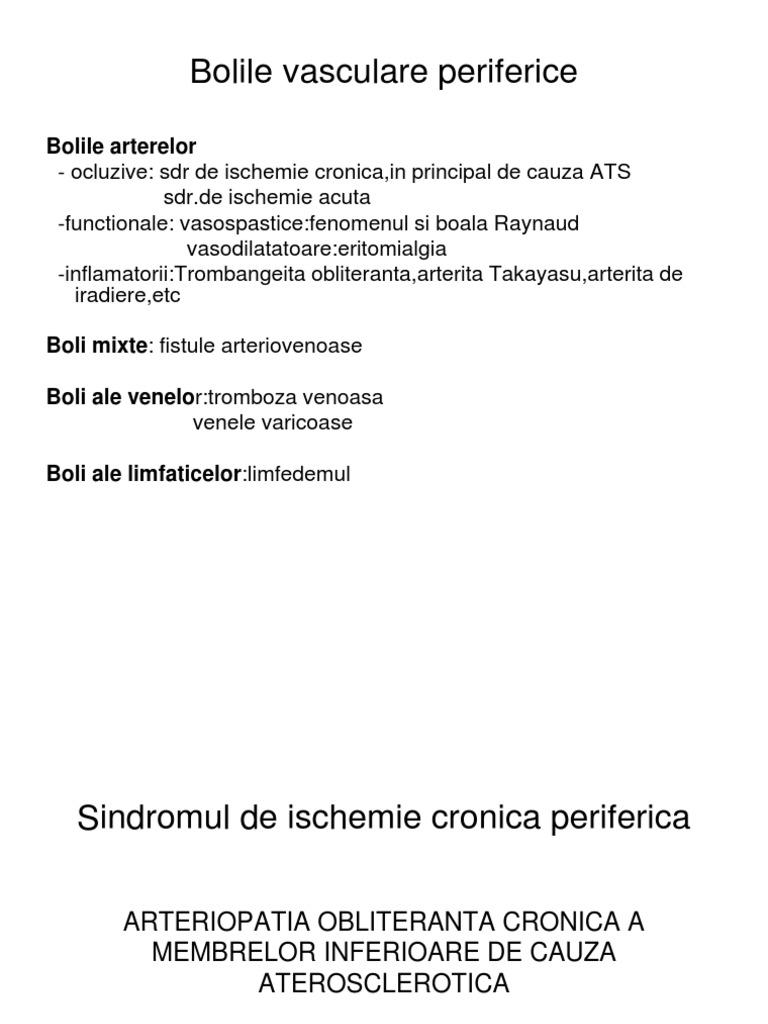 Homeopatia în tratamentul varicelor - Profilaxie - April
