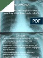 Tuberculosis y Neumonia