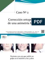 2. Corrección ortopédica de una asimetría facial