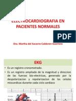 Electrocardiografia en Pacientes Normales