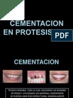 Cementacion en Protesis Fija (1)