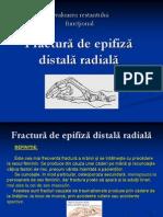 Fractura de epifiză distală radială