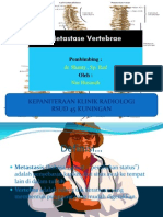 Presentation Radiologi Metastasis Vertebrae Nur