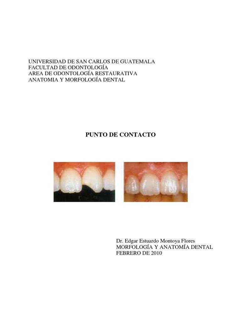 Increíble Anatomía Dental Ruedas Festooning - Anatomía de Las ...