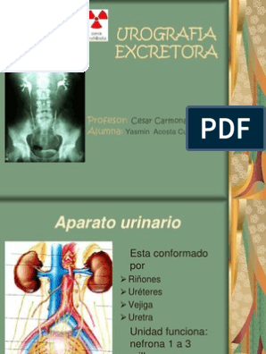 Dieta ligera para urografias