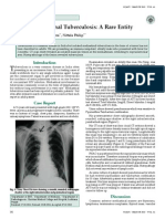 Isolated Mediastnal Tuberculosis